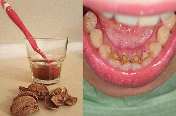 Как снять зубной камень в домашних условиях у человека