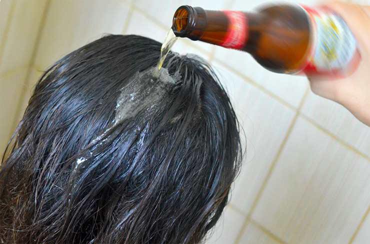 Как избавиться от перхоти на волосах в домашних условиях